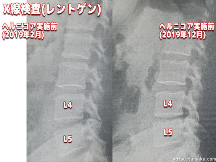 腰痛の原因特定に繋げるレントゲン画像診断