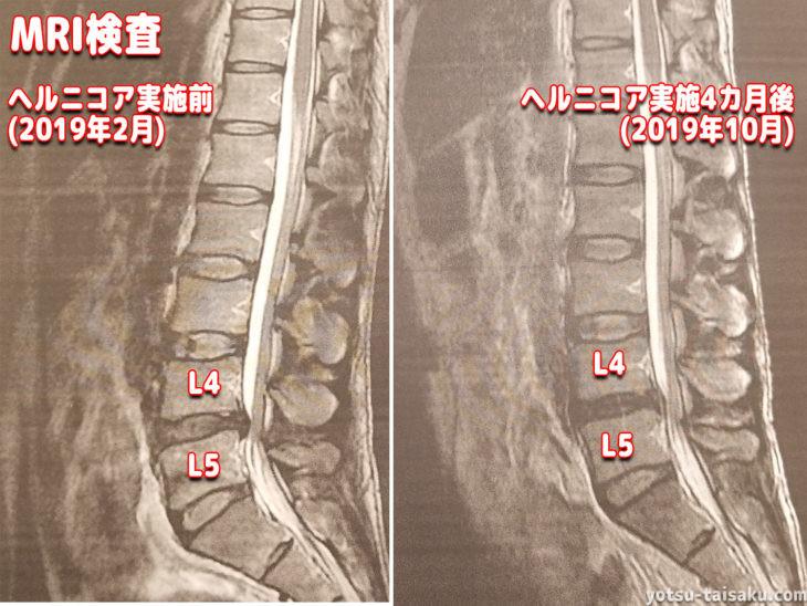 腰痛の原因特定に繋げるMRI画像診断