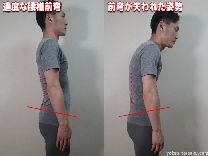 適度な腰椎前弯と腰痛の原因となる前弯が失われた姿勢