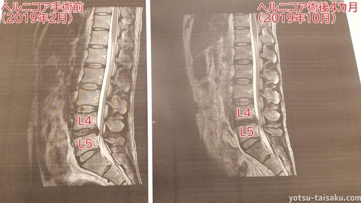 ヘルニコア手術前後の効果を比較