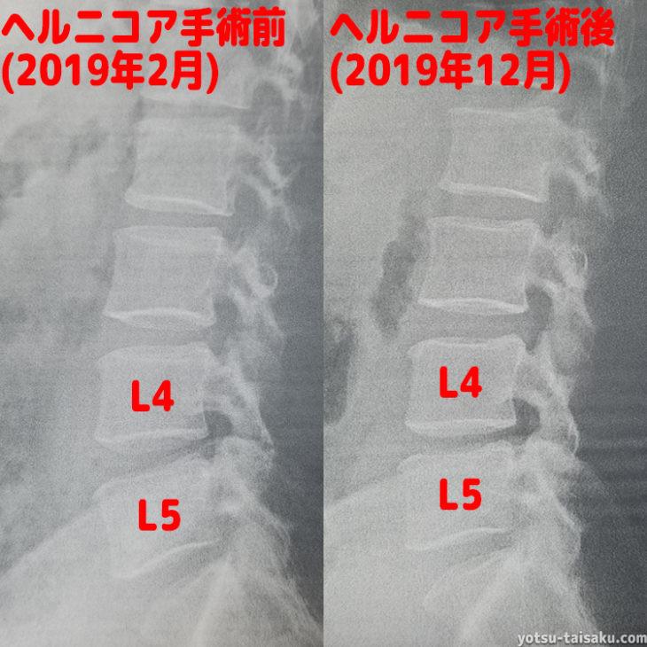 ヘルニコア手術後(6カ月)レントゲン画像比較