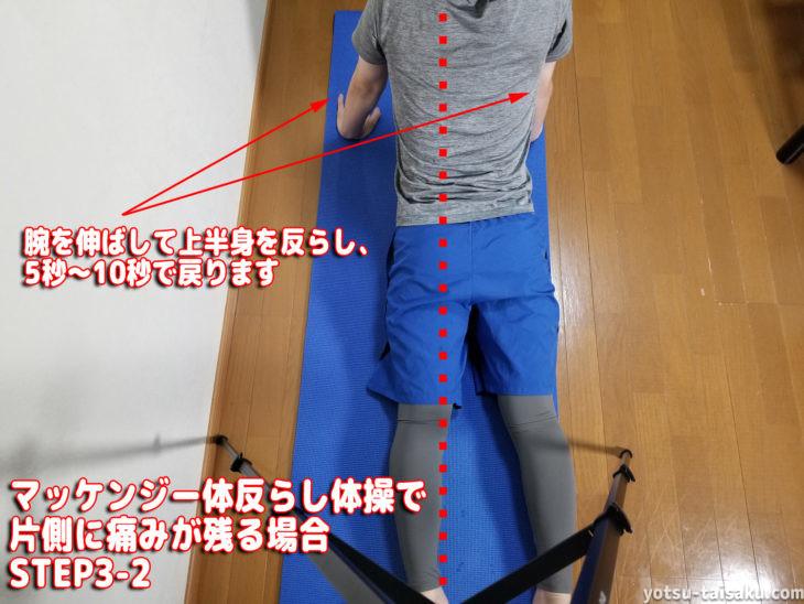 マッケンジー体反らし体操で片側に痛みが残る場合ステップ3-2