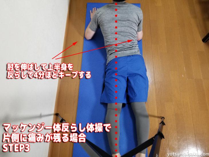 マッケンジー体反らし体操で片側に痛みが残る場合ステップ3