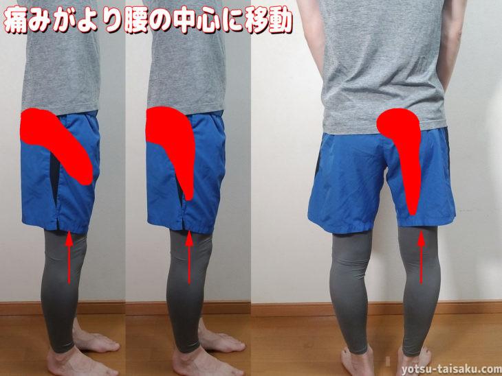 マッケンジー体操による痛みの中央化現象2